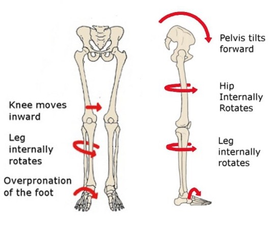 diagram showing skeletal structure of hip and legs